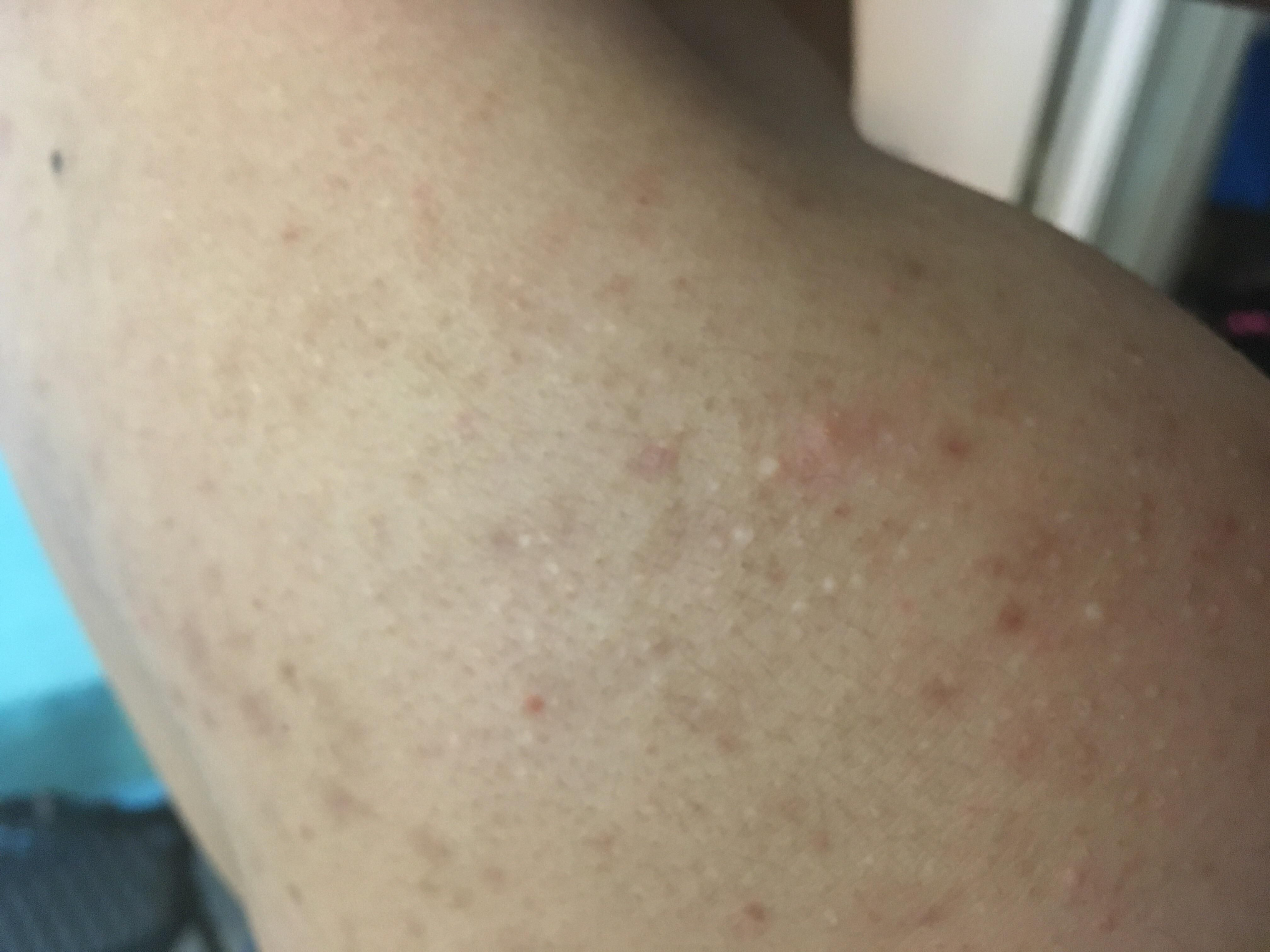 Pin On Acne Scars Removal