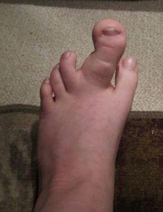 canberra foot fetish