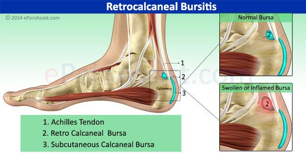 causes symptoms and prevention of bursitis The clicks health hub provides information on bursitis, including the causes,  symptoms and treatment.