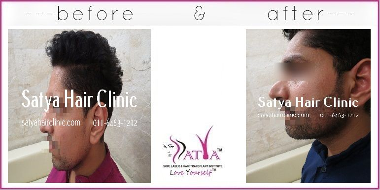 Satya Hair transplant clinic in India is equipped with