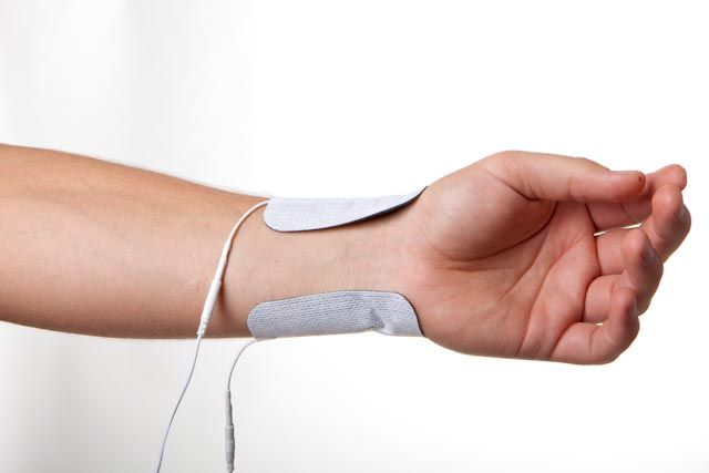 Wrist pain electrode placement | TENS | Tens unit placement