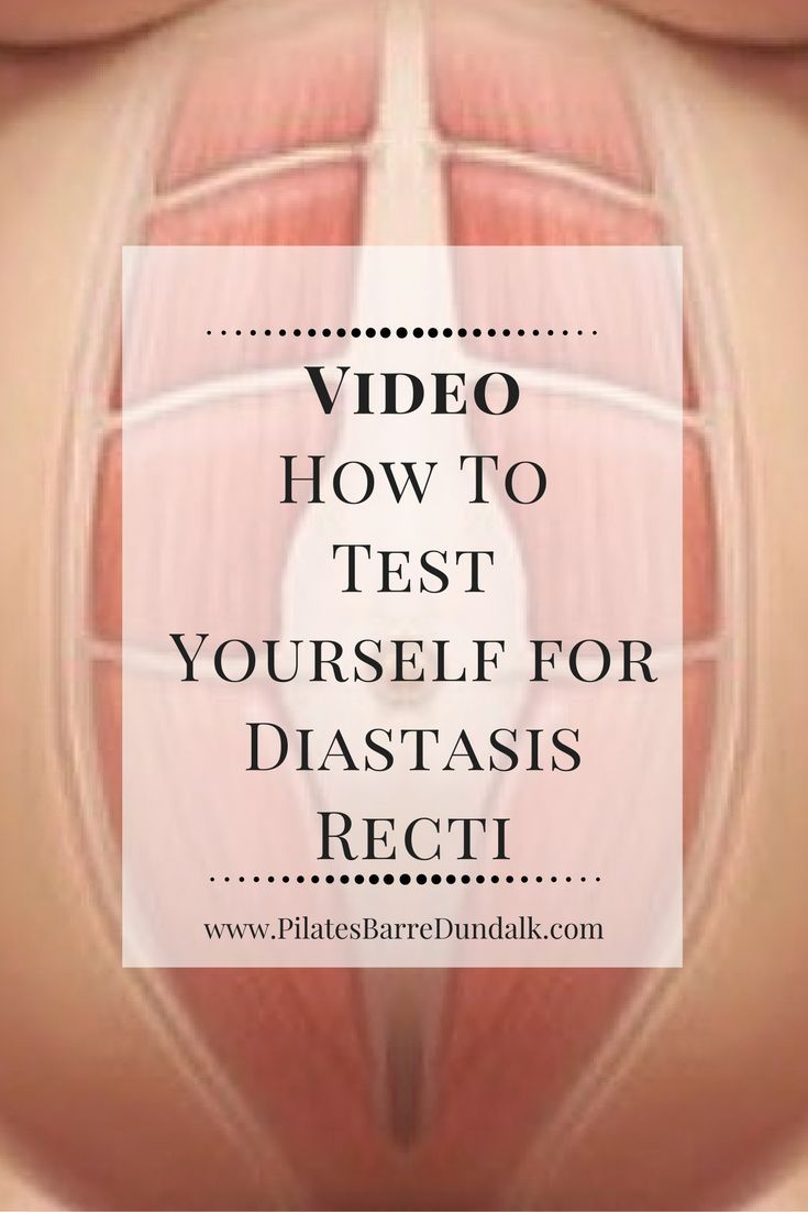 How To Test Yourself for Diastasis Recti. This is a must do for everyone in the early postpartum period.  Always test at eight weeks postnatal before you are due to return to your exercise regime.