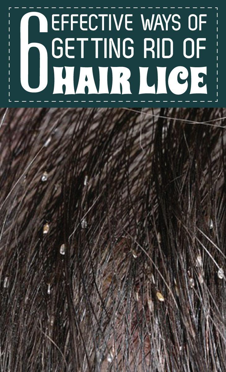 effective ways of getting rid of hair lice remedies corner