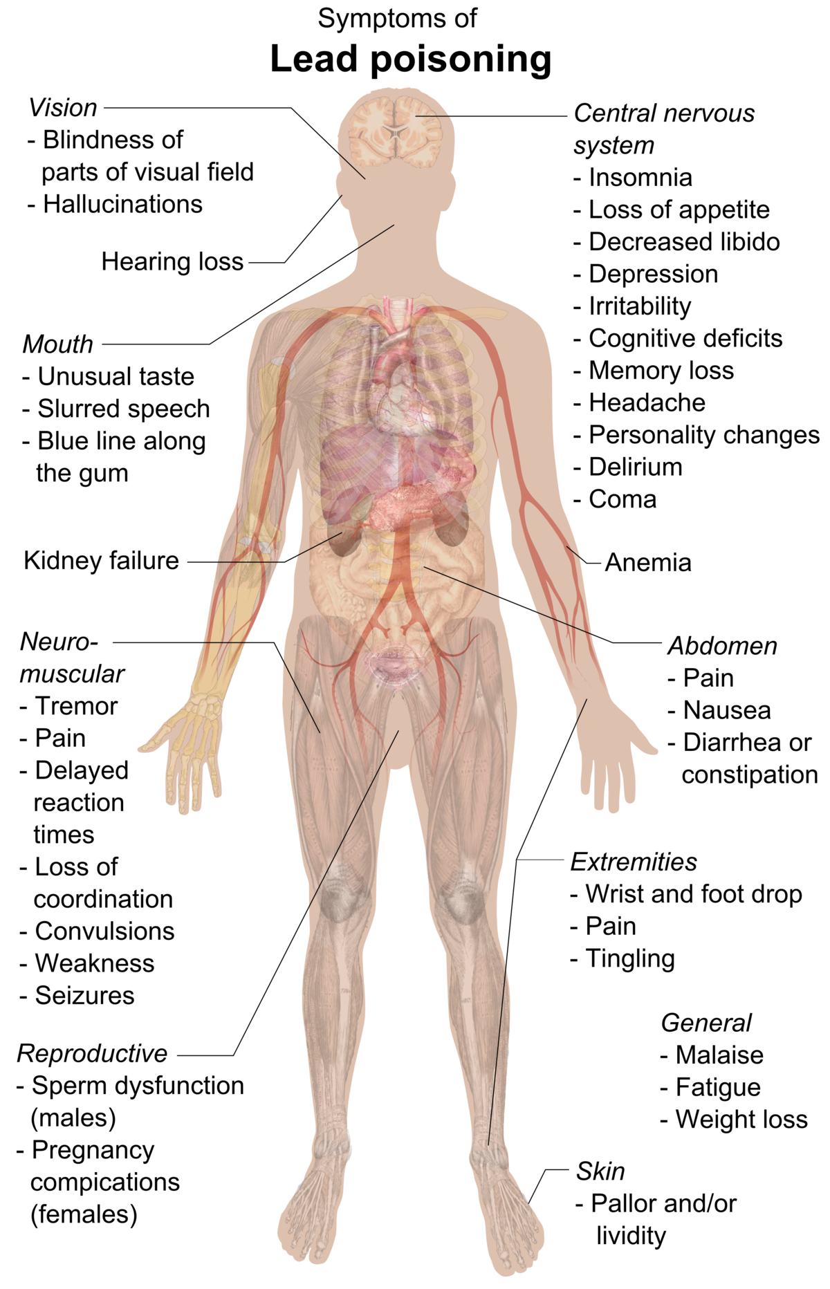 Symptoms Of Lead Poisoning Raster Lead Poisoning Wikipedia Lead Poisoning Memory Loss Medical Facts