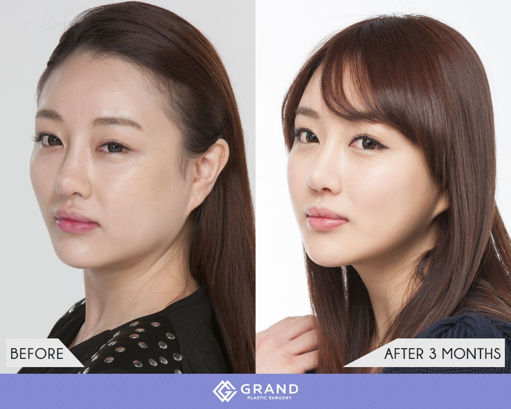 Square-jaw reduction | Intresting in 2019 | Plastic surgery