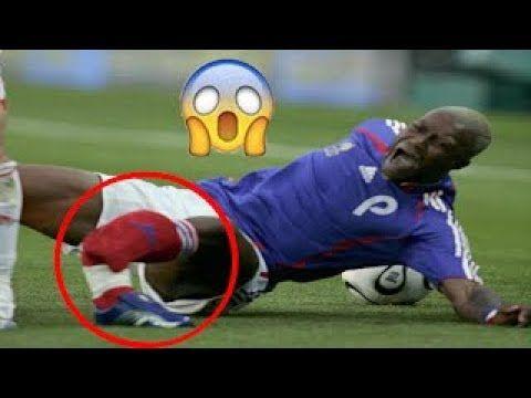Top 5 Horrific Injuries In Football Worst Injuries Broken Leg Football
