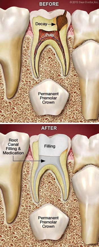 Permanent Gold Teeth Implants : permanent, teeth, implants, Pulpectomy, Canal, Therapy, Primary, Baby), Tooth., While, People, Believe,
