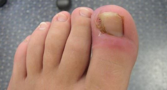 How to Get Rid of an Ingrown Toenail? (Remove Or Fix) | • NATURAL ...