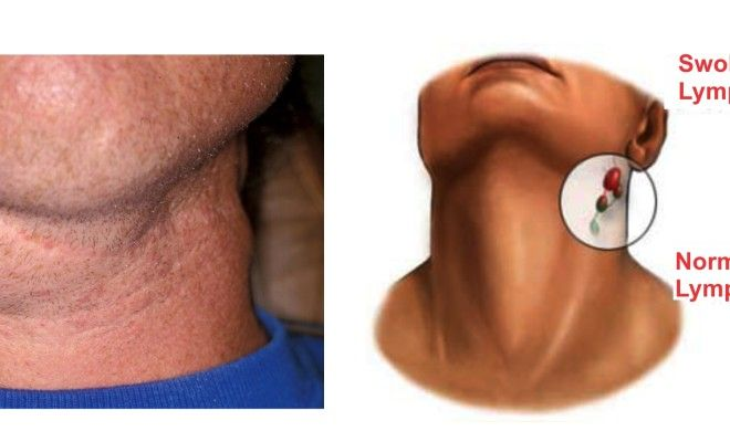 how to fix movable lump under chin