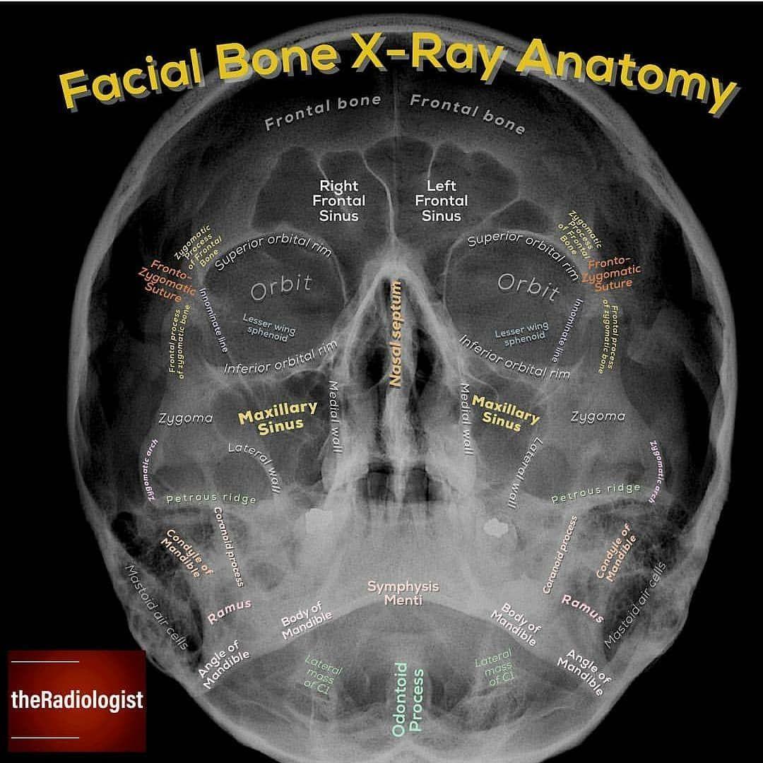 Waters view Facial bones anatomy مطالب ما را در وب سایت و