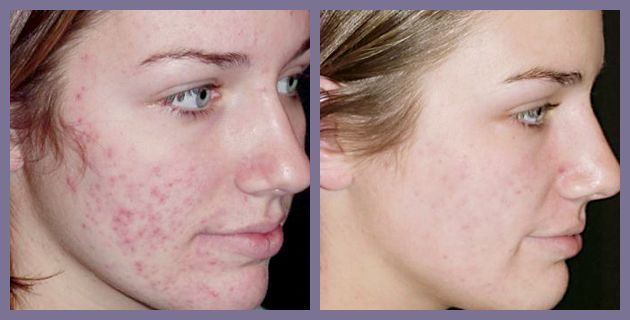 Image result for Treat Acne Scars