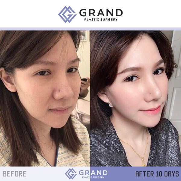 Pin by Amee Thao on makeup in 2019 | Eyelid surgery