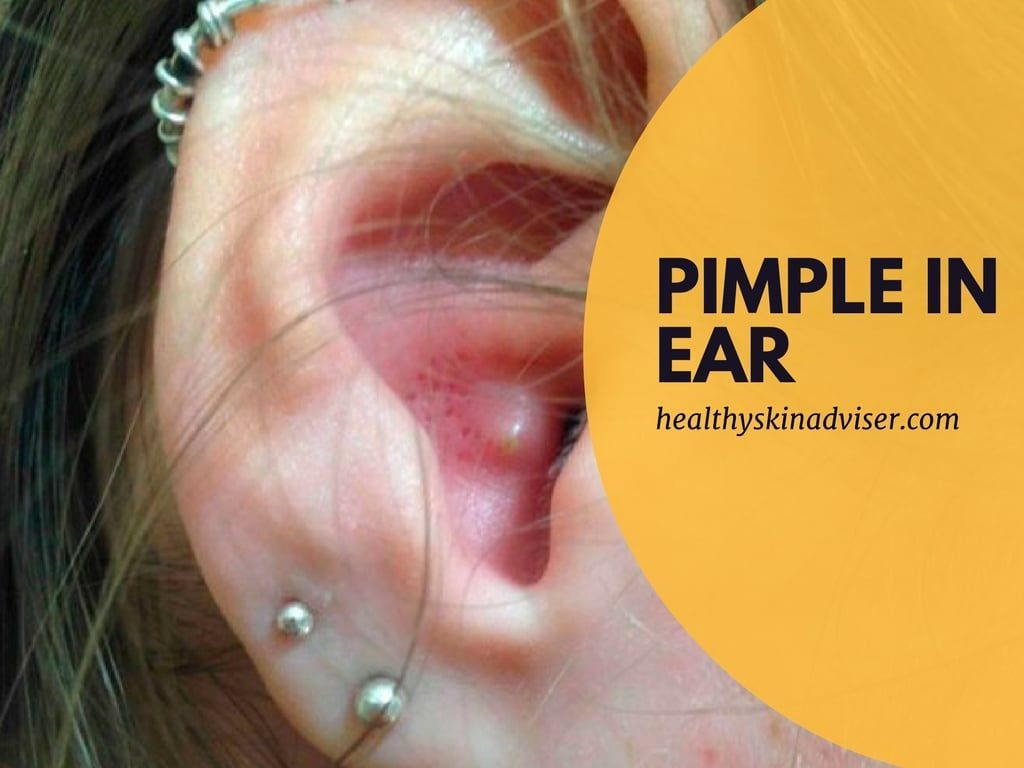 photo 10Ways toGet Rid ofAnnoying Pimples inYour Ear, ItOnly Takes aRemedy and aDay