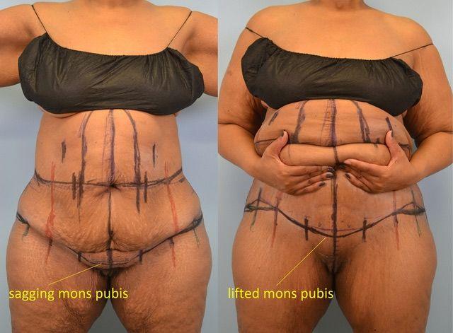 Rava recipes weight loss photo 23