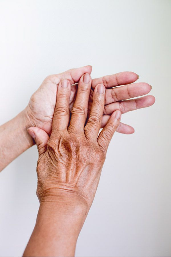 Rheumatoid Arthritis Ra Tends To Begin Slowly With Minor Symptoms That Come And Go Usually On Both Sides Of The Body And Progress Over A Period Of Weeks