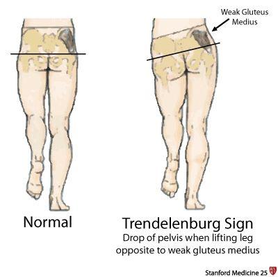 Trendelenburg sign | Physical Therapy! PTA | Pinterest ...