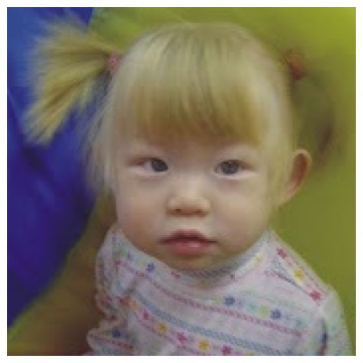 Drawings Of Albinos Google Search Albino Girl People With