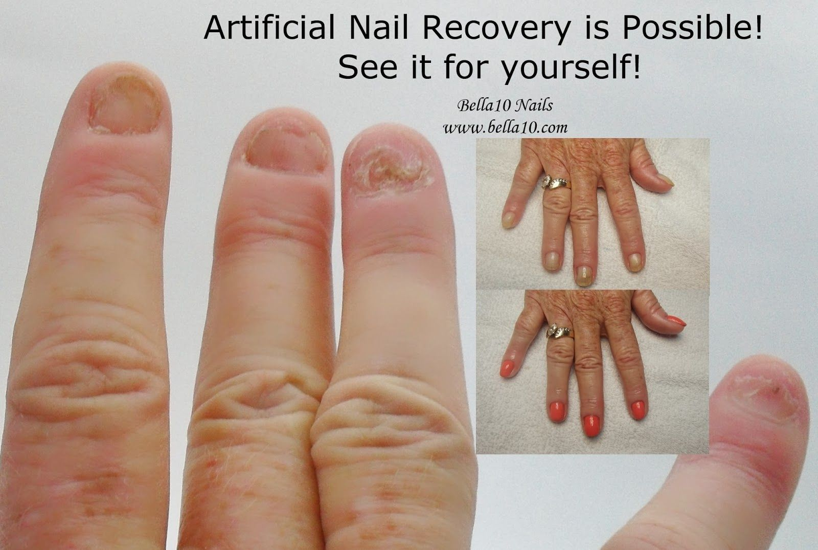 Have Your Acrylic Or Gel Nails Removed The Safe Way Only And Know Your Natural Nails Will Be Better For It Artificial Nails Remove Acrylic Nails Gel Nails