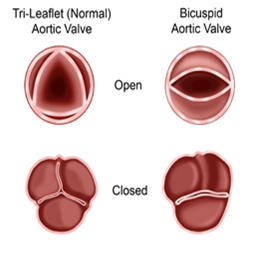 bicuspid stenosis - Google Search   Bicuspid aortic valve ...