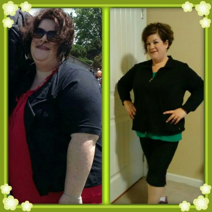 Gastric Sleeve 3 Months Post Op Down 60 Pounds Weight Loss Diet