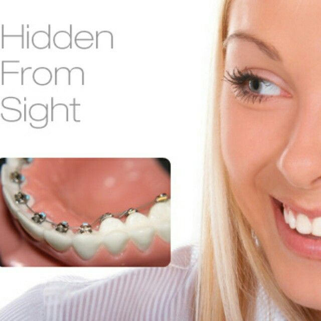 Invisible Braces Www 360orthodontics Com Clear Braces Invisible Braces Lingual Braces