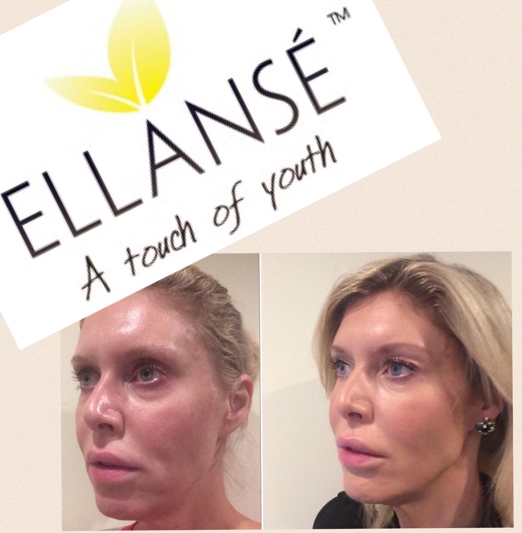 Ellanse is the perfect dermal filler with amazing natural