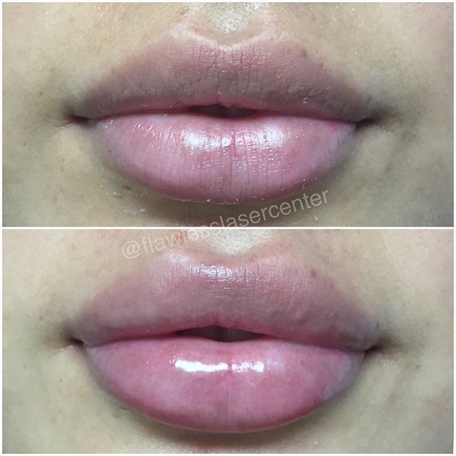 Every Client Is Different And We Make Sure We Give Our Customers The Results They Want These Flawless Results Were Lip Fillers Skin Center Lips Inspiration