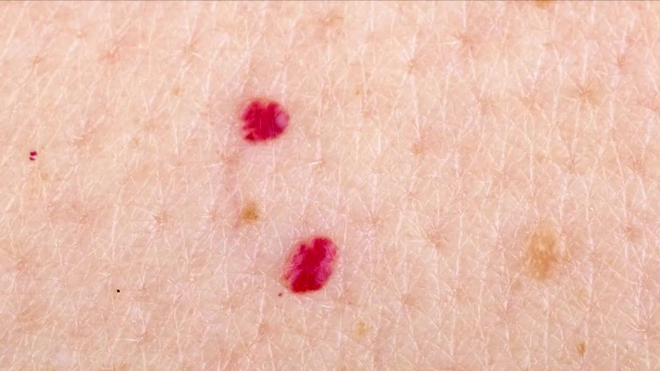 Warum erscheinen rote Muttermale auf der Haut | Rote