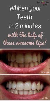 whitening  teeth whitening diy  teeth whitening diy instant  teeth whit teeth whitening  teeth whitening diy  teeth whitening diy instant  teeth whit teeth whitening  tee...