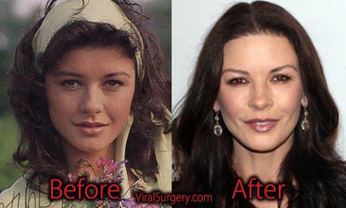 Patti stanger vor der plastischen Chirurgie