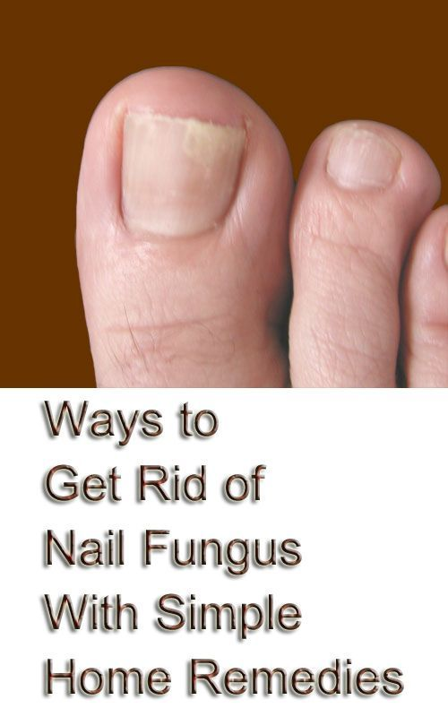 14 Simple Home Remedies to Get Rid of Toe Nail Fungus | Toenail ...