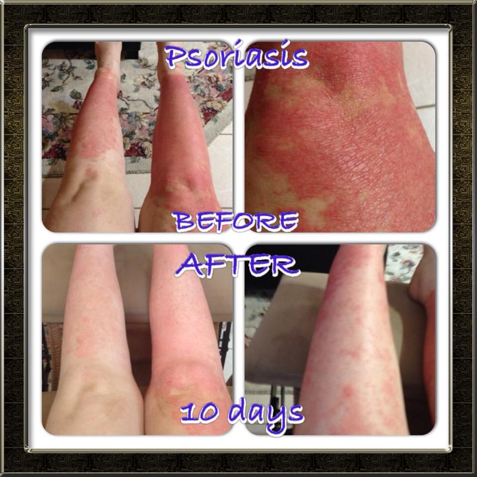 Psoriasis Essential Oils Pinterest