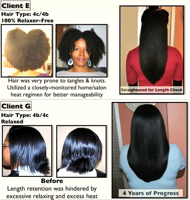 Facts About Iron Deficiency Hair Loss Natural Hair Styles Damp
