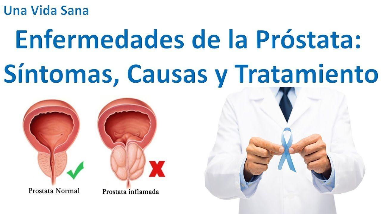 próstata agrandada que pesa 86 parrillar