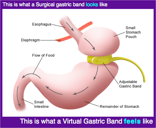 Virtual Gastric Band Hypnosis And How It Works Health Is The New