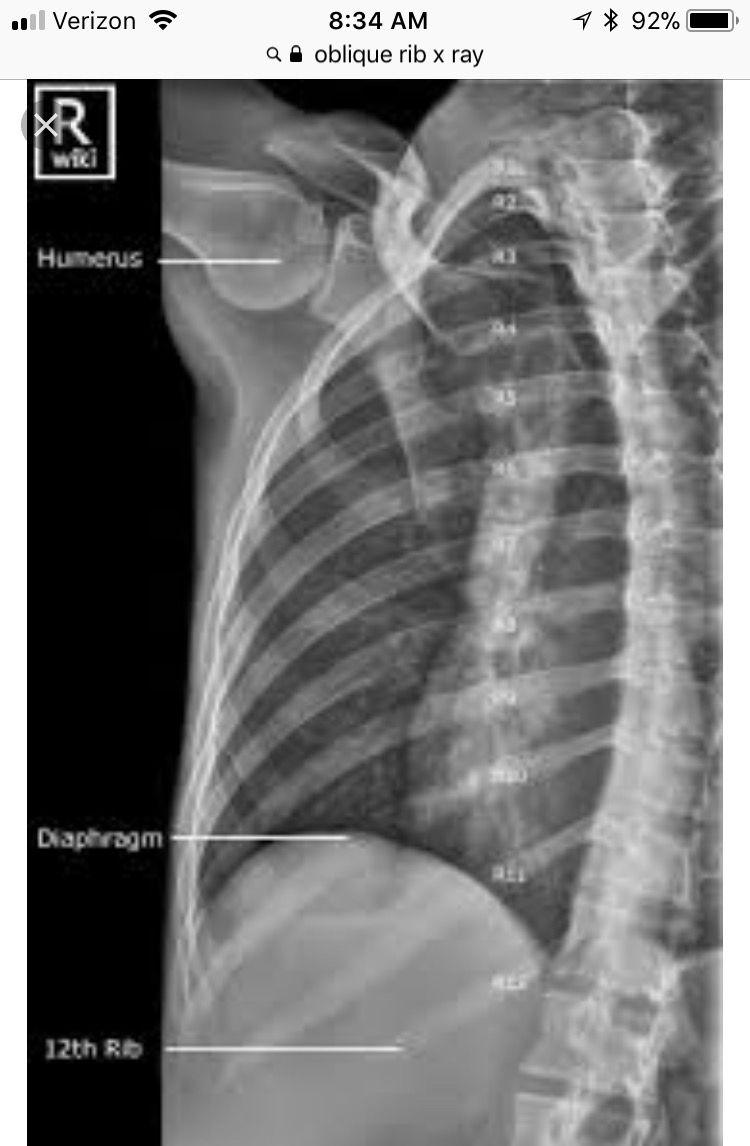 Ungewöhnlich Nasenbein X Ray Anatomie Zeitgenössisch - Physiologie ...