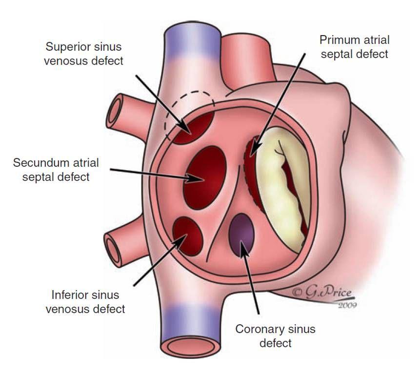 heart asd ostium - Google Search | Congenital Heart Disease ...