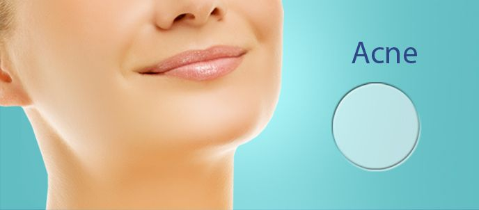 NewGel+ silicone gel is effective in reducing and fading acne scars!