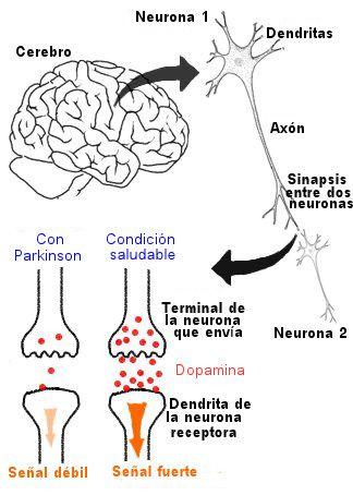 Enfermedad de Parkinson | Cuidadores | Pinterest | Enfermedad de ...