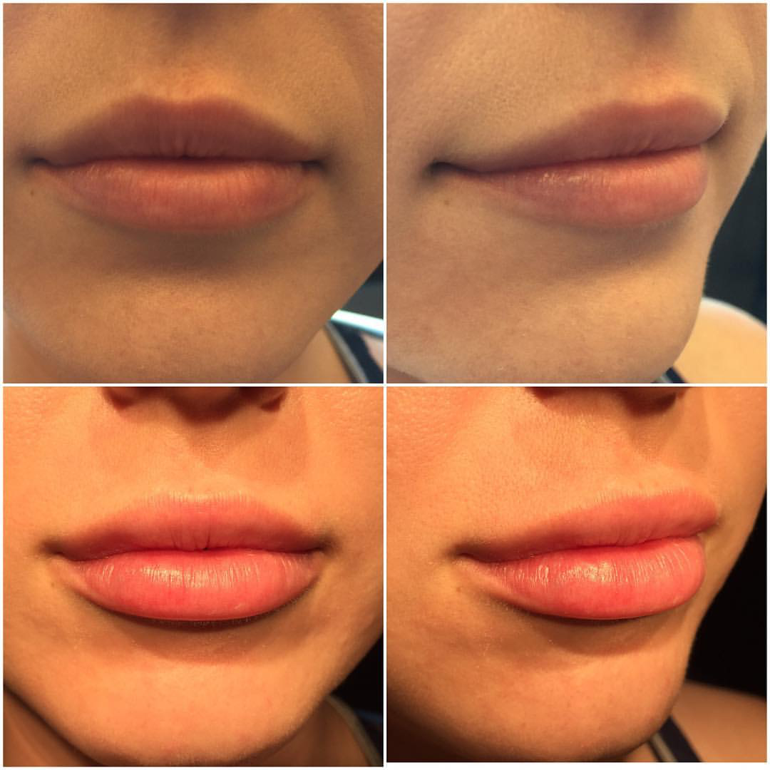 I had 1.8 ml Juvederm yesterday on both lips. …