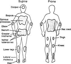 Common locations of pressure ulcers (stippled areas) in