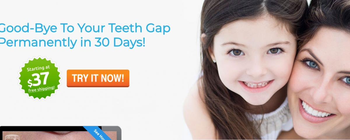 Solution for Teeth Gap Gap teeth, Fix teeth, Teeth
