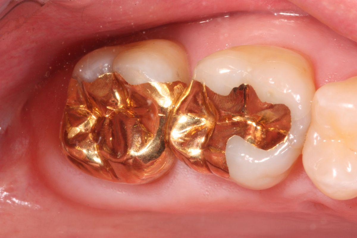 Pin On Dental Crowns Bridges