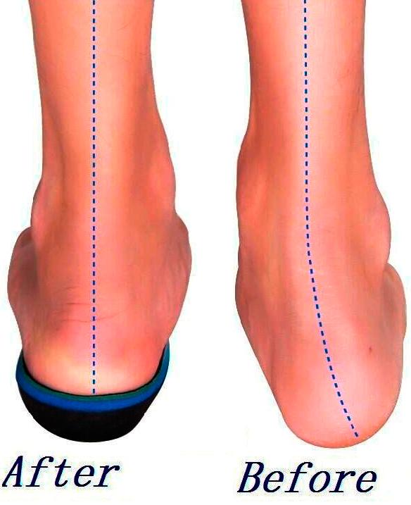 Best Insoles for Flat Feet | Feet, Good