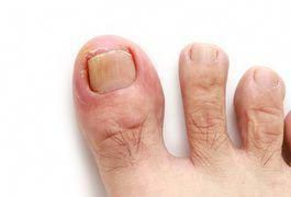 Toenails Are Made Of A Smooth Hard Substance Called Keratin