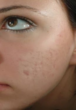 Scar Retreat Cream Serum.The Natural Acne Cure Vitamin C Serum For Acne Scarring And