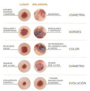 cancer en el piel sintomas