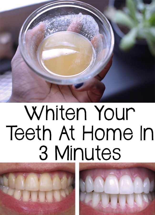 Whiten Your Teeth At Home In 3 Minutes Beauty Teeth Whitening