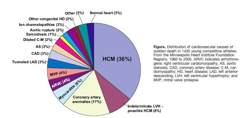 Idea By Nonas Arc On Hypertrophic Cardiomyopathy Hcm Heart Institute Hypertrophic Cardiomyopathy Normal Heart