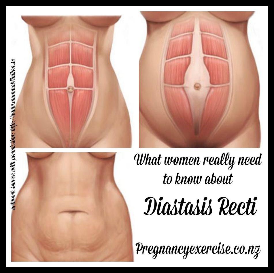 Diastasis Recti, What Women need to know | Abdomen, Anatomía ...